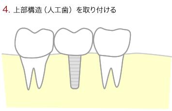 上部構造(人工歯)を取り付ける