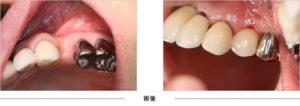 症例5 奥歯1本欠損
