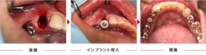症例6 抜歯即時埋入2